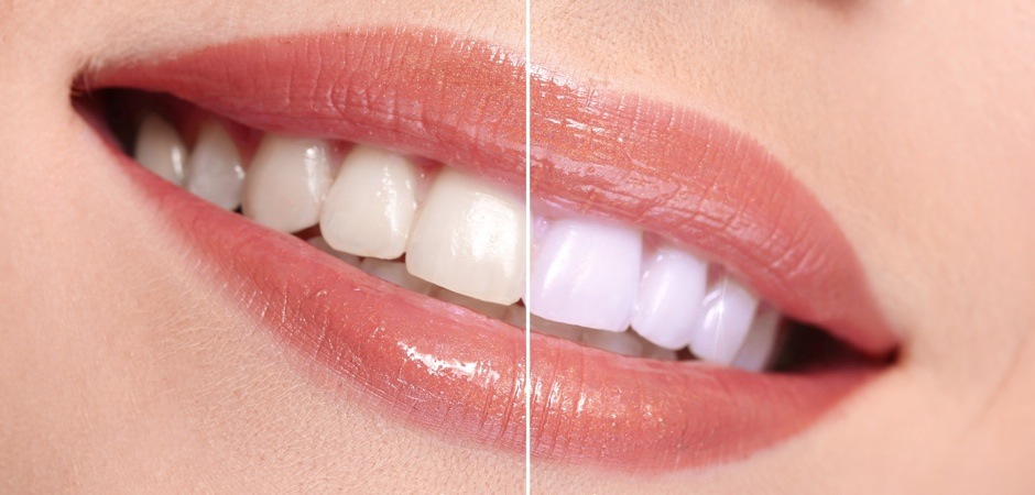 teeth-whitening-beforeafter